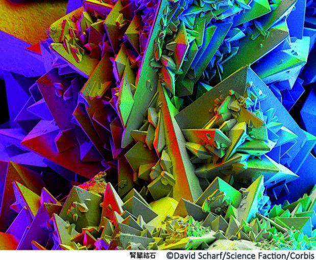 Kidney Stone, Microscopic View